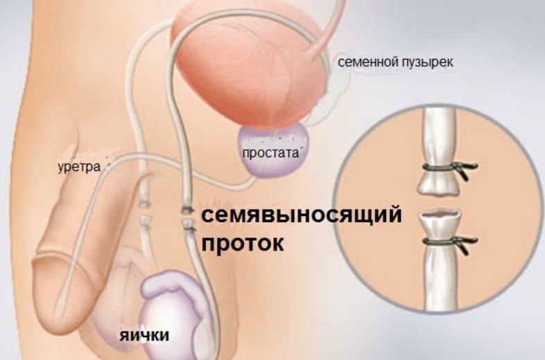 вазорекция